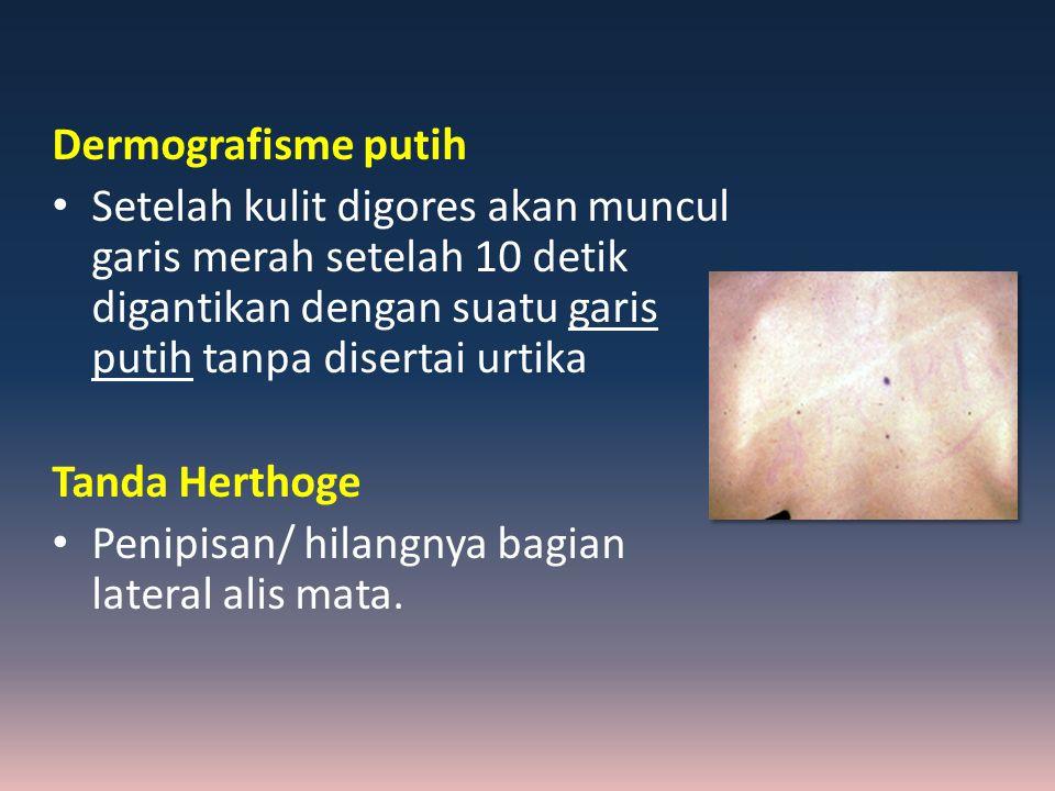 Dermografisme putih Setelah kulit digores akan muncul garis merah setelah 10 detik digantikan dengan suatu garis putih tanpa disertai urtika.