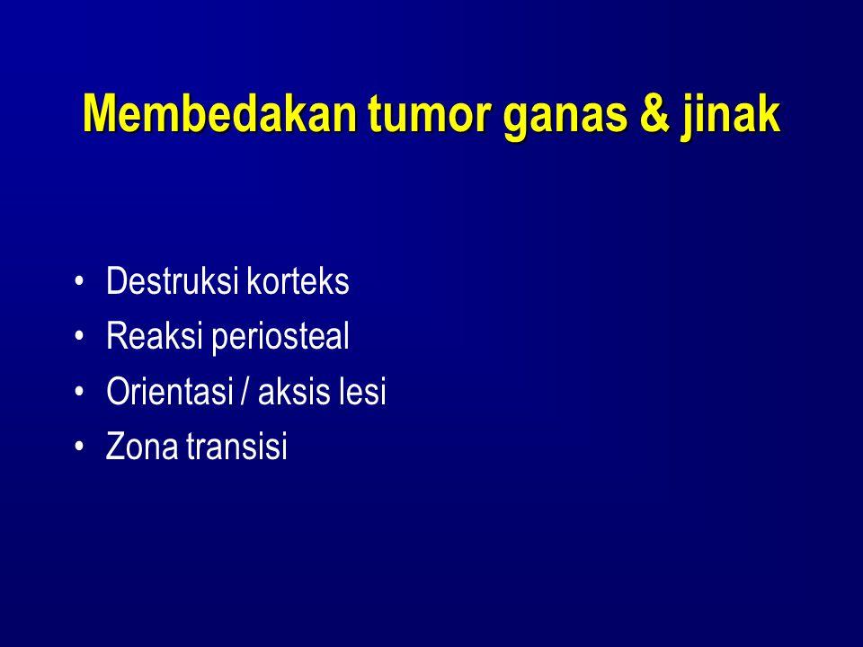 Membedakan tumor ganas & jinak