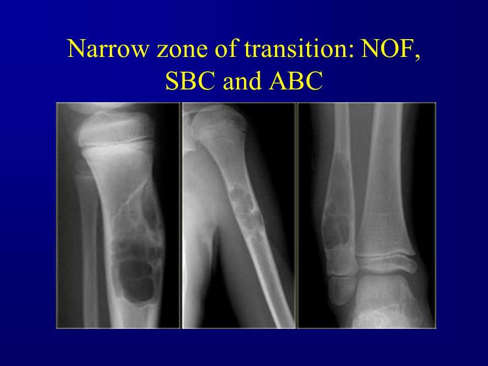 Narrow zone of transition: NOF, SBC and ABC