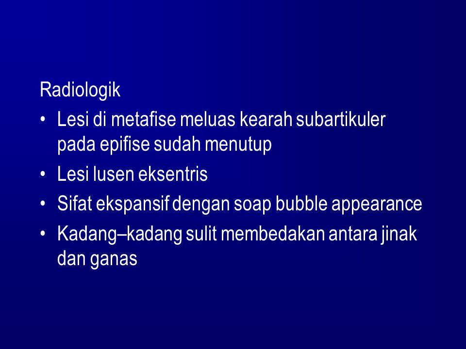 Radiologik Lesi di metafise meluas kearah subartikuler pada epifise sudah menutup. Lesi lusen eksentris.