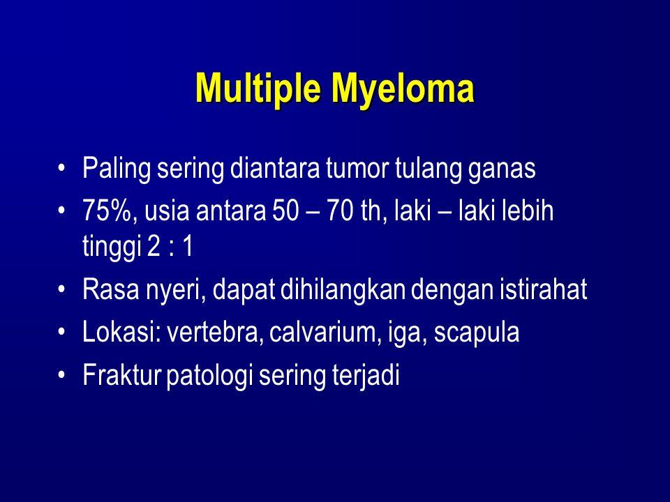 Multiple Myeloma Paling sering diantara tumor tulang ganas