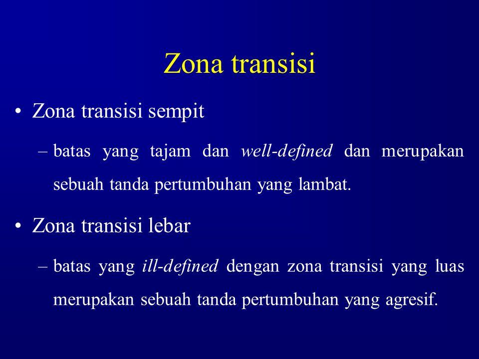 Zona transisi Zona transisi sempit Zona transisi lebar