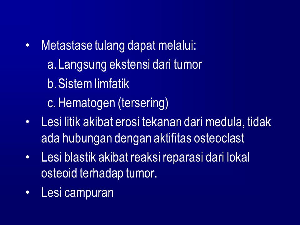 Metastase tulang dapat melalui: