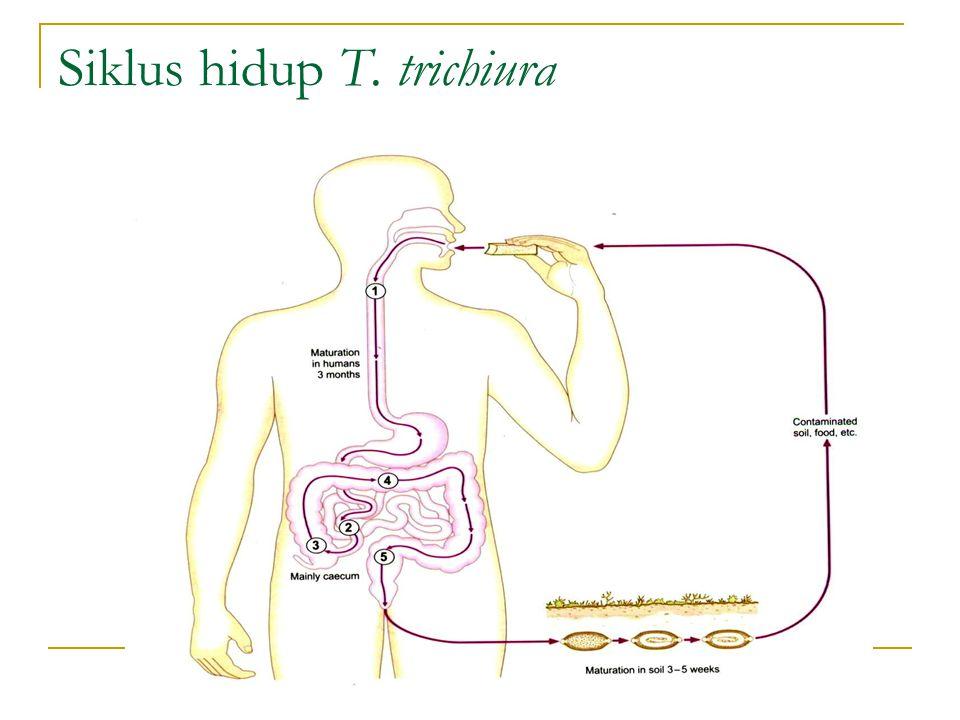 Siklus hidup T. trichiura