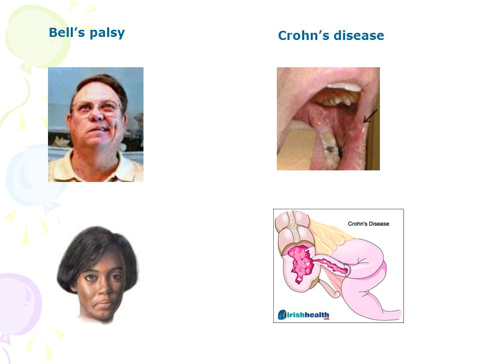 Bell's palsy Crohn's disease