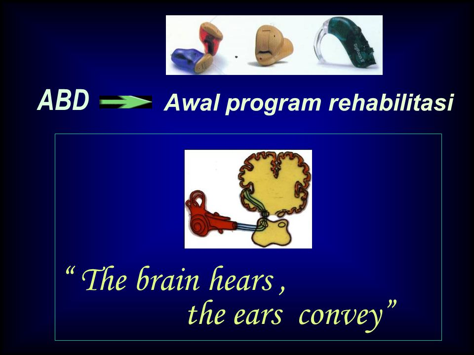 The brain hears , the ears convey