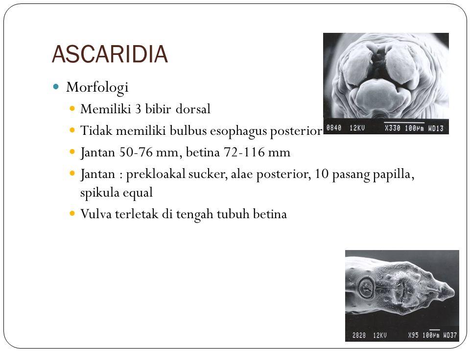 ASCARIDIA Morfologi Memiliki 3 bibir dorsal