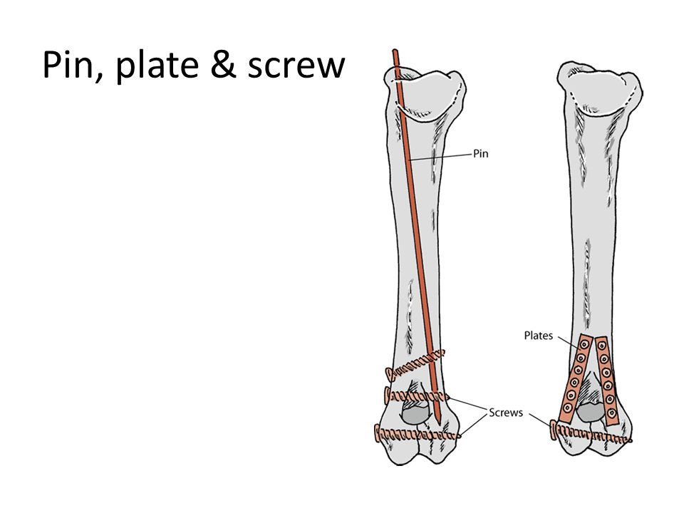 Pin, plate & screw