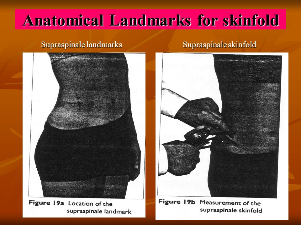 Anatomical Landmarks for skinfold