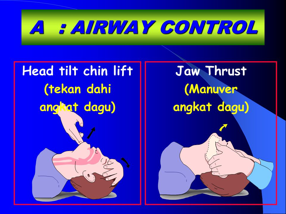 A : AIRWAY CONTROL Head tilt chin lift Jaw Thrust (tekan dahi