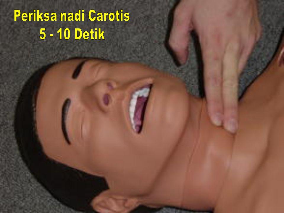 Periksa nadi Carotis 5 - 10 Detik