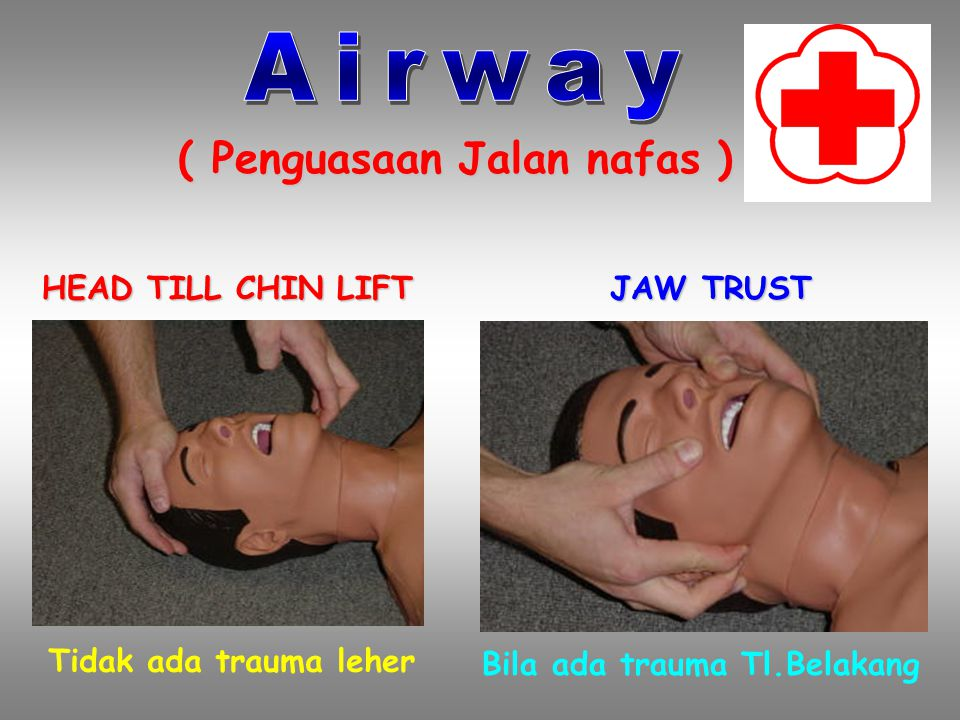 Airway ( Penguasaan Jalan nafas ) HEAD TILL CHIN LIFT JAW TRUST