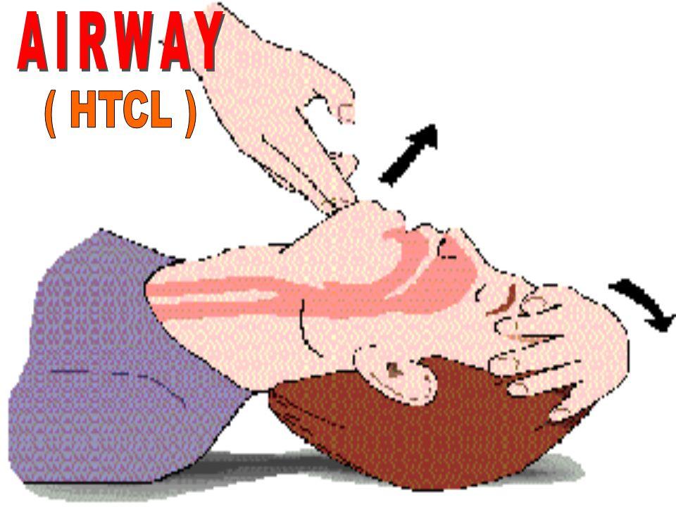 AIRWAY ( HTCL )