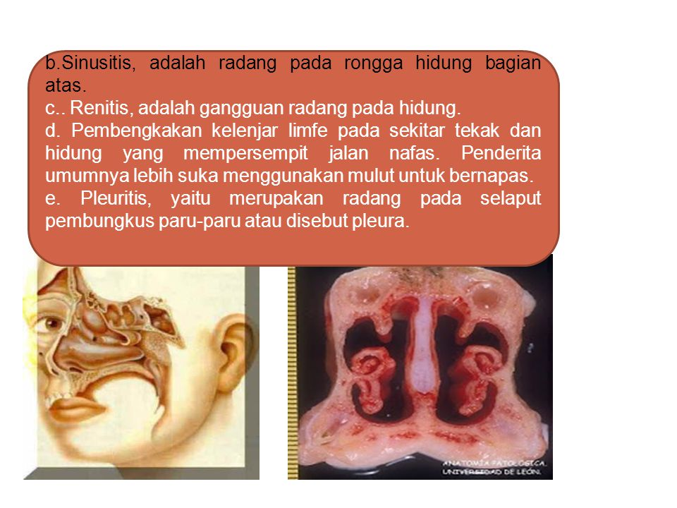 b.Sinusitis, adalah radang pada rongga hidung bagian atas.