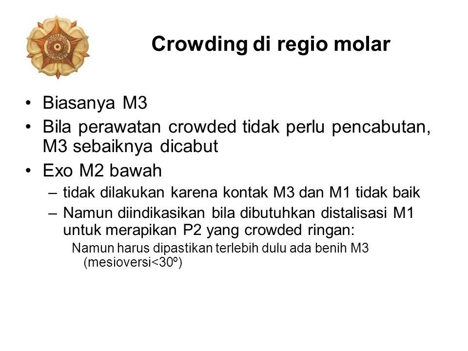 Crowding di regio molar