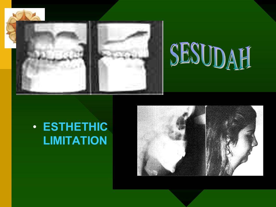SESUDAH ESTHETHIC LIMITATION