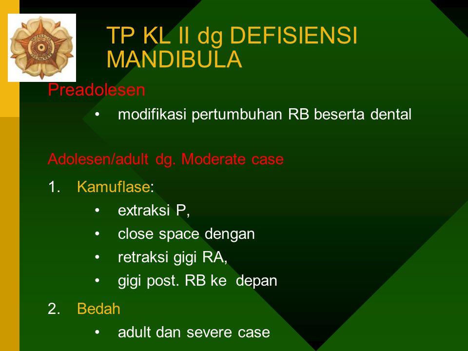 TP KL II dg DEFISIENSI MANDIBULA