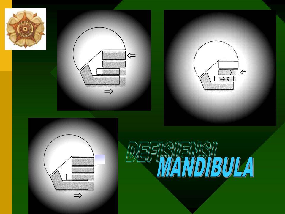 DEFISIENSI MANDIBULA