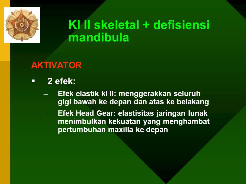 Kl II skeletal + defisiensi mandibula