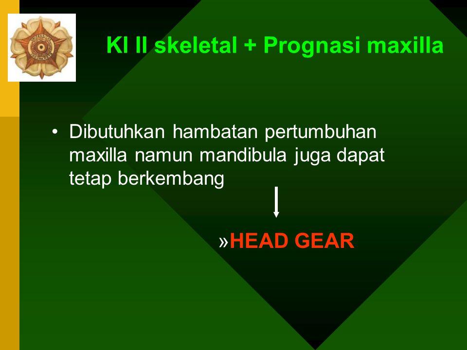 Kl II skeletal + Prognasi maxilla