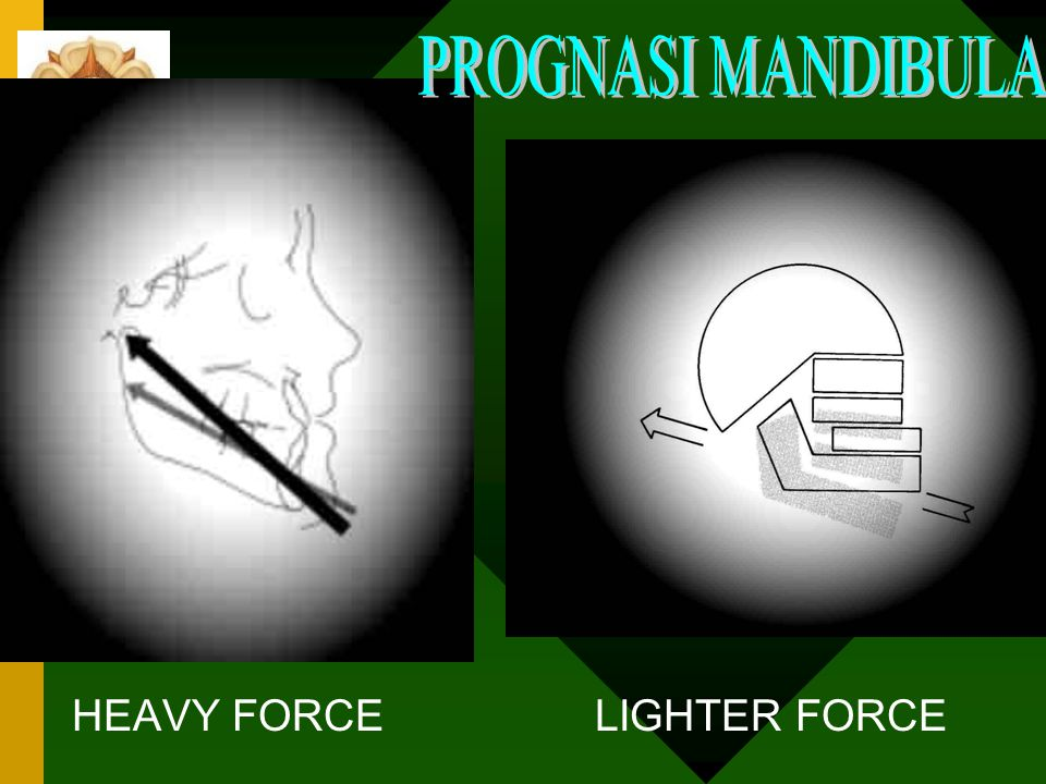 PROGNASI MANDIBULA HEAVY FORCE LIGHTER FORCE