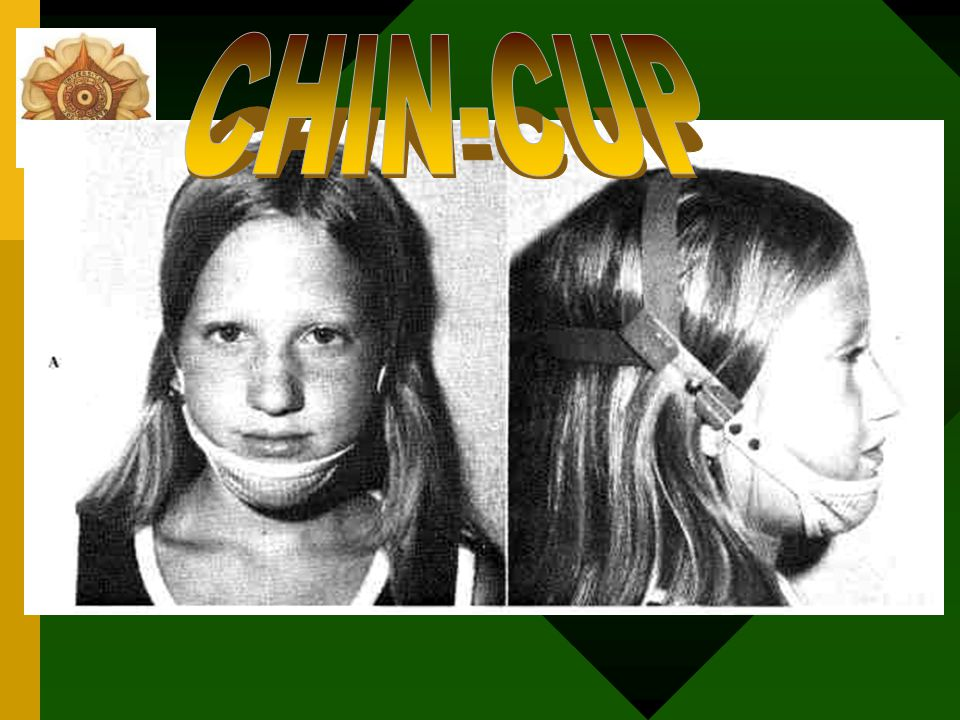 CHIN-CUP