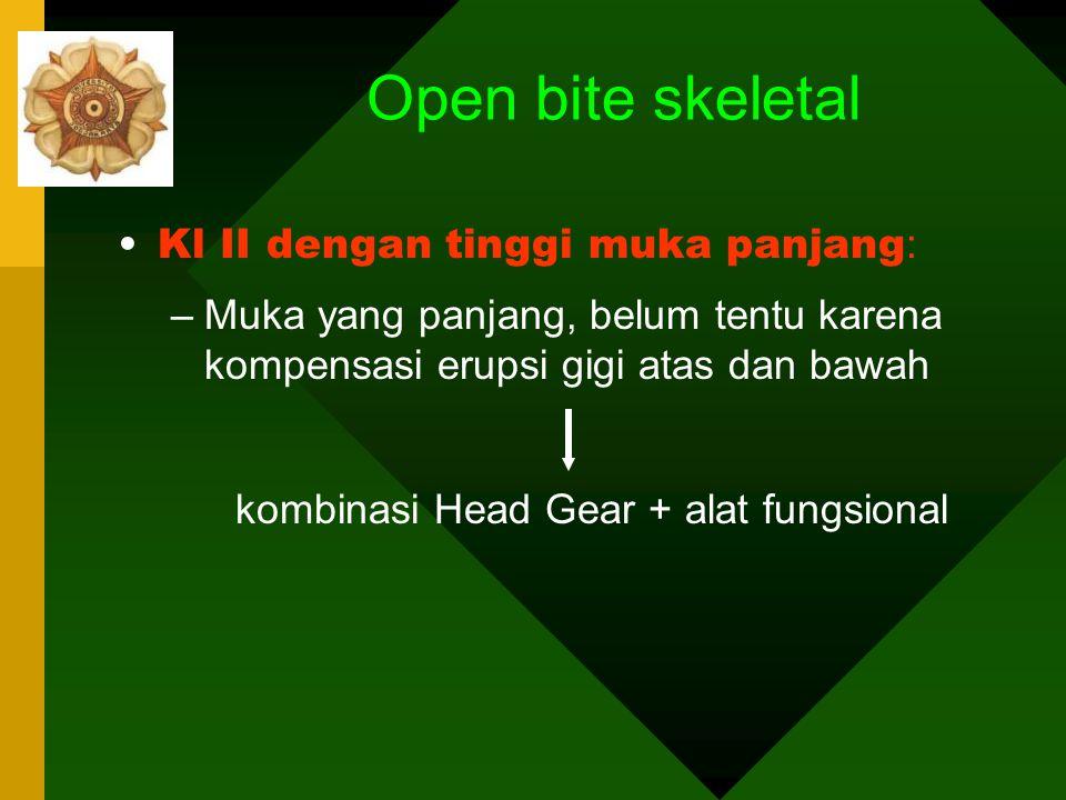 Open bite skeletal Kl II dengan tinggi muka panjang: