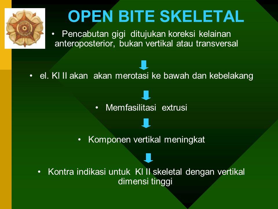 OPEN BITE SKELETAL Pencabutan gigi ditujukan koreksi kelainan anteroposterior, bukan vertikal atau transversal.