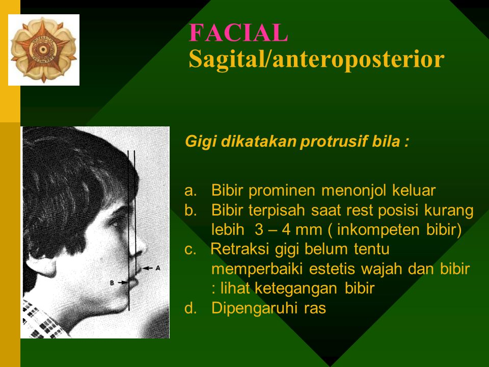 FACIAL Sagital/anteroposterior