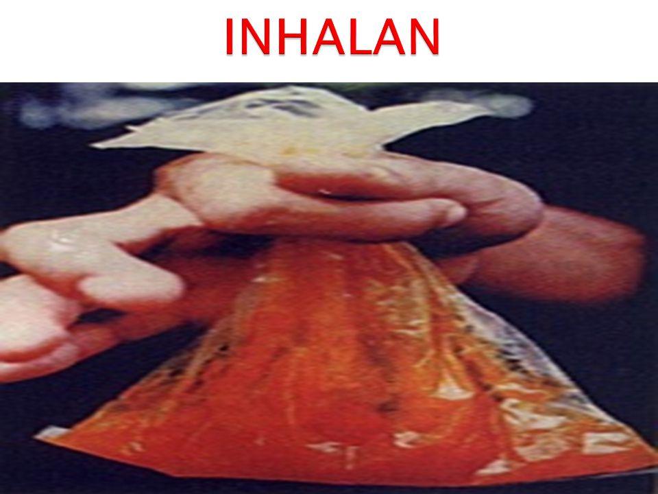 INHALAN