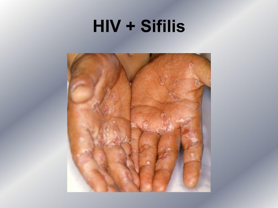 HIV + Sifilis