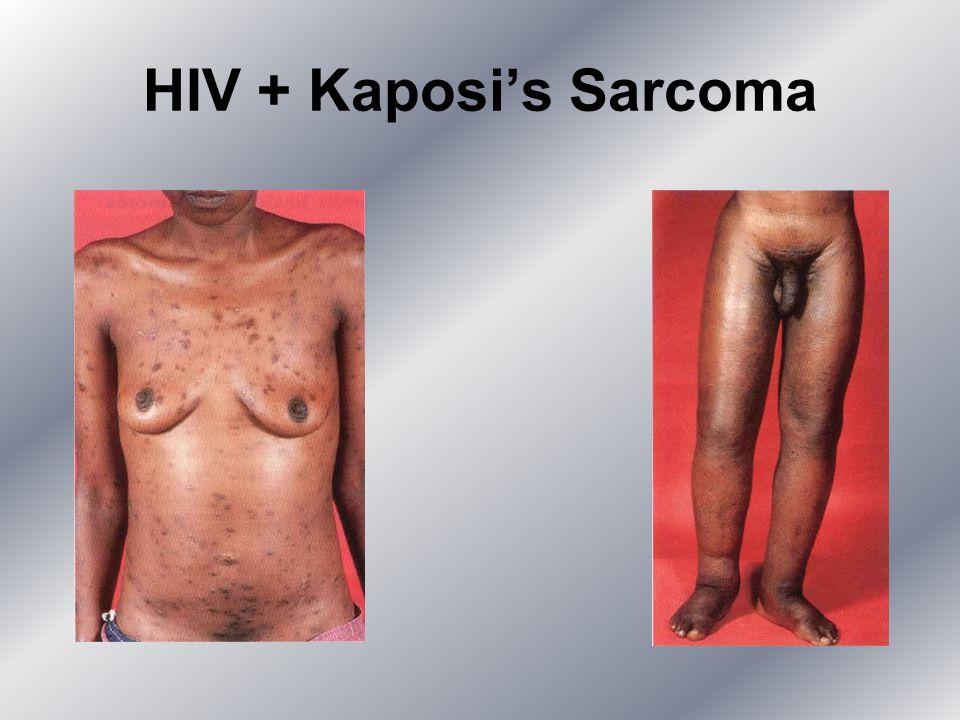 HIV + Kaposi's Sarcoma
