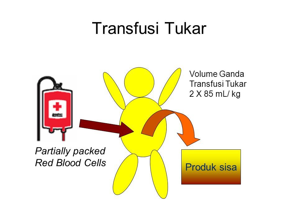 Transfusi Tukar Partially packed Red Blood Cells Produk sisa