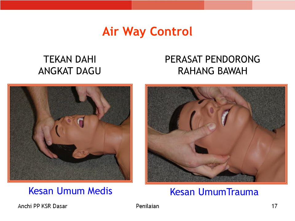 Air Way Control TEKAN DAHI ANGKAT DAGU PERASAT PENDORONG RAHANG BAWAH