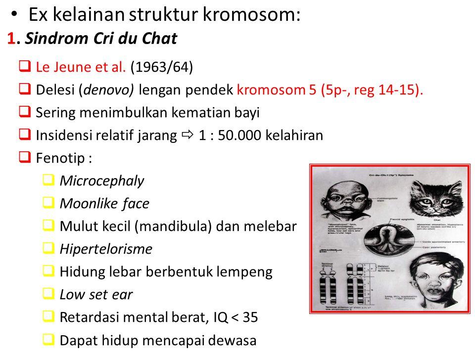 Ex kelainan struktur kromosom: