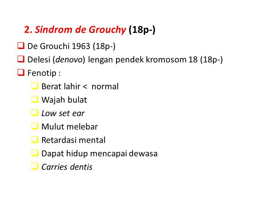 2. Sindrom de Grouchy (18p-)