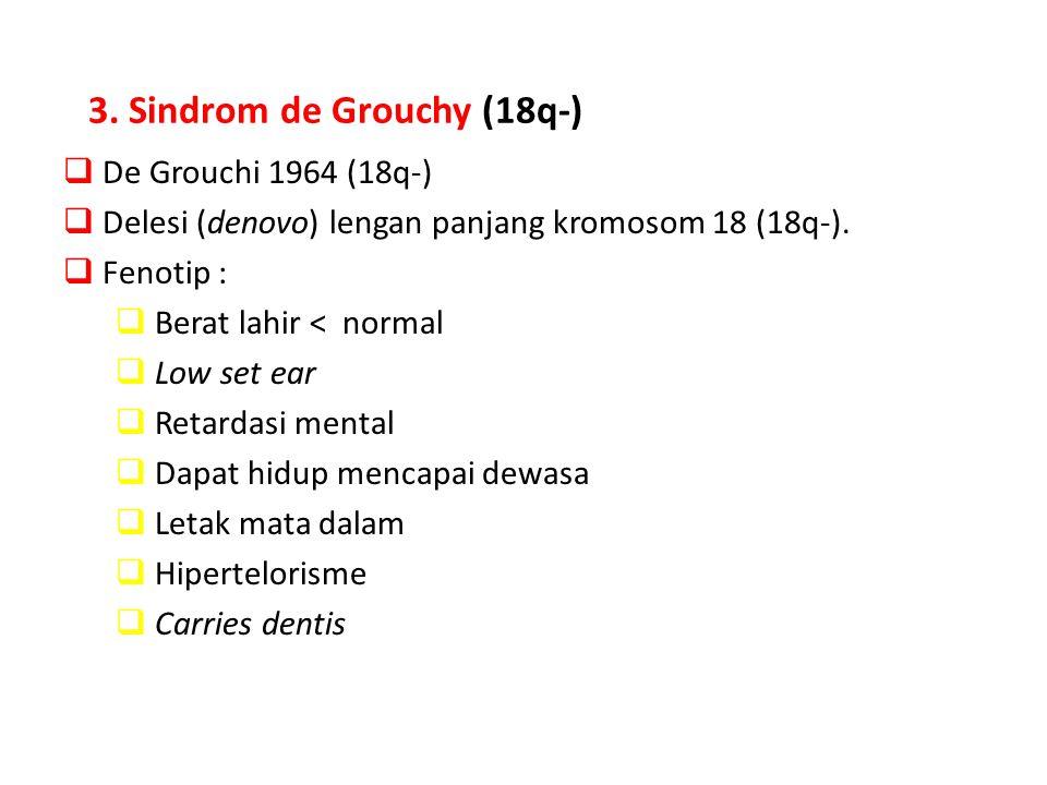 3. Sindrom de Grouchy (18q-)