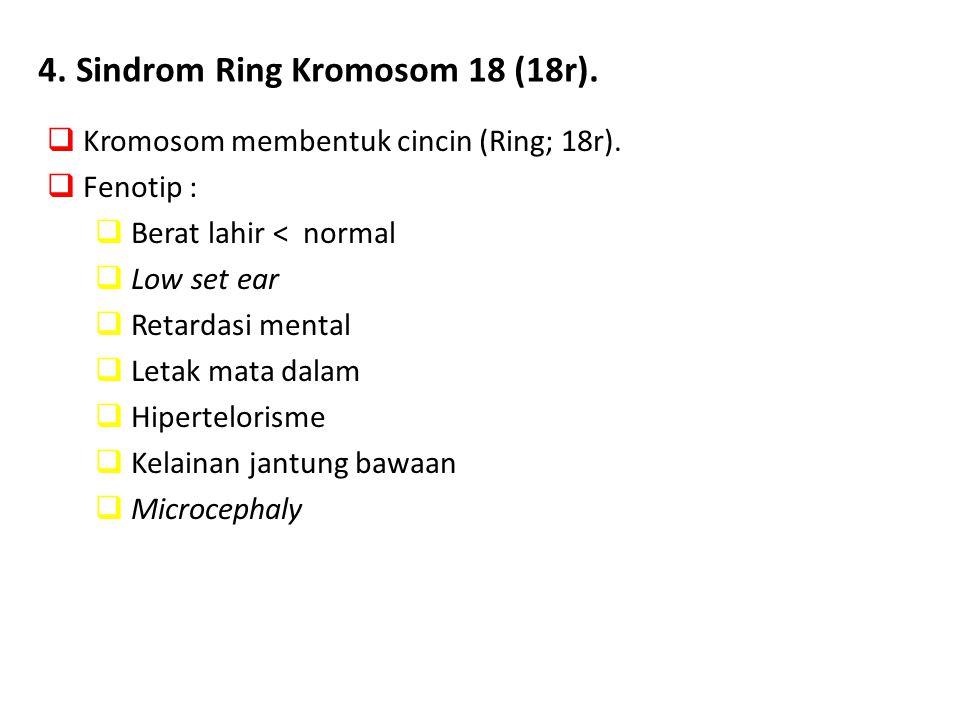 4. Sindrom Ring Kromosom 18 (18r).