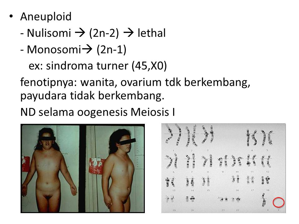 Aneuploid - Nulisomi  (2n-2)  lethal. - Monosomi (2n-1) ex: sindroma turner (45,X0)