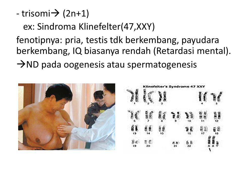 - trisomi (2n+1) ex: Sindroma Klinefelter(47,XXY)