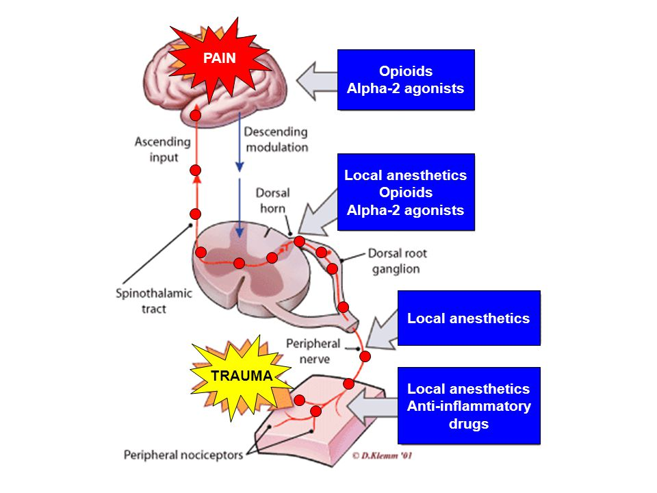 PAIN Opioids. Alpha-2 agonists. Local anesthetics. Opioids. Alpha-2 agonists. Local anesthetics.