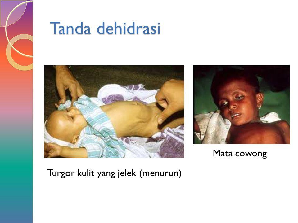 Tanda dehidrasi Mata cowong Turgor kulit yang jelek (menurun)