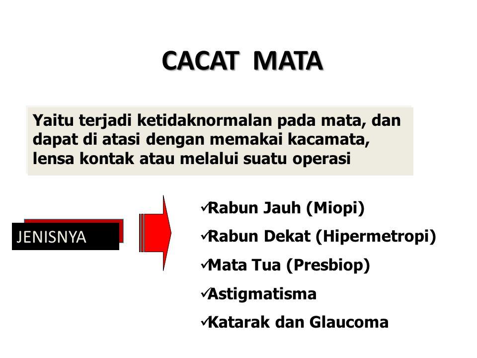 CACAT MATA Yaitu terjadi ketidaknormalan pada mata, dan dapat di atasi dengan memakai kacamata, lensa kontak atau melalui suatu operasi.