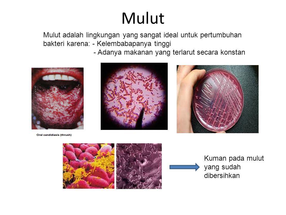 Mulut Mulut adalah lingkungan yang sangat ideal untuk pertumbuhan bakteri karena: - Kelembabapanya tinggi.
