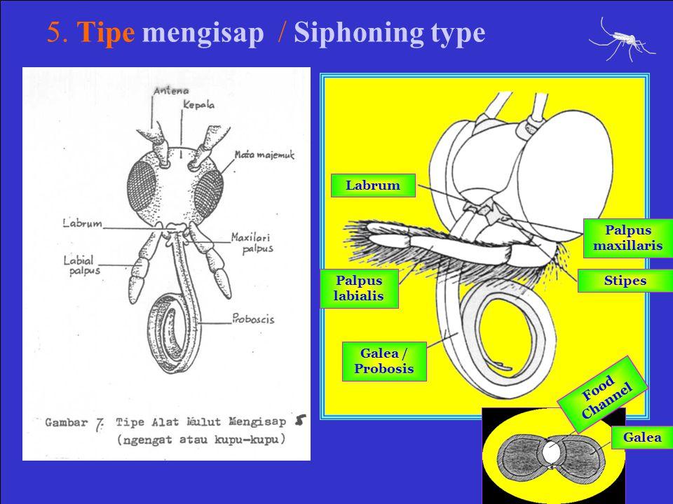 5. Tipe mengisap / Siphoning type