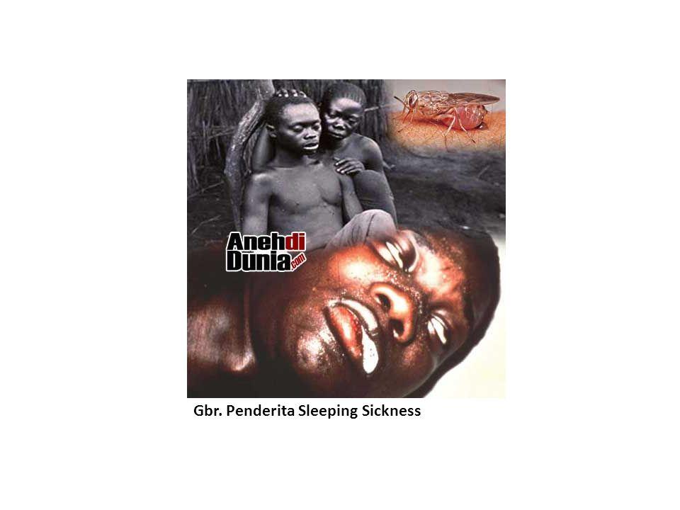 Gbr. Penderita Sleeping Sickness