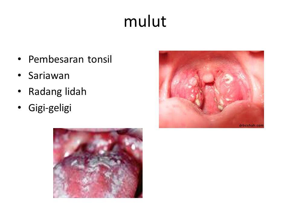 mulut Pembesaran tonsil Sariawan Radang lidah Gigi-geligi