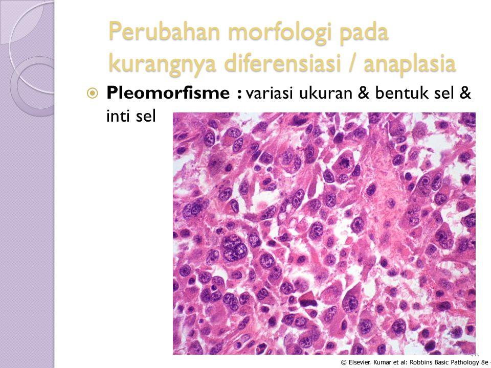 Perubahan morfologi pada kurangnya diferensiasi / anaplasia