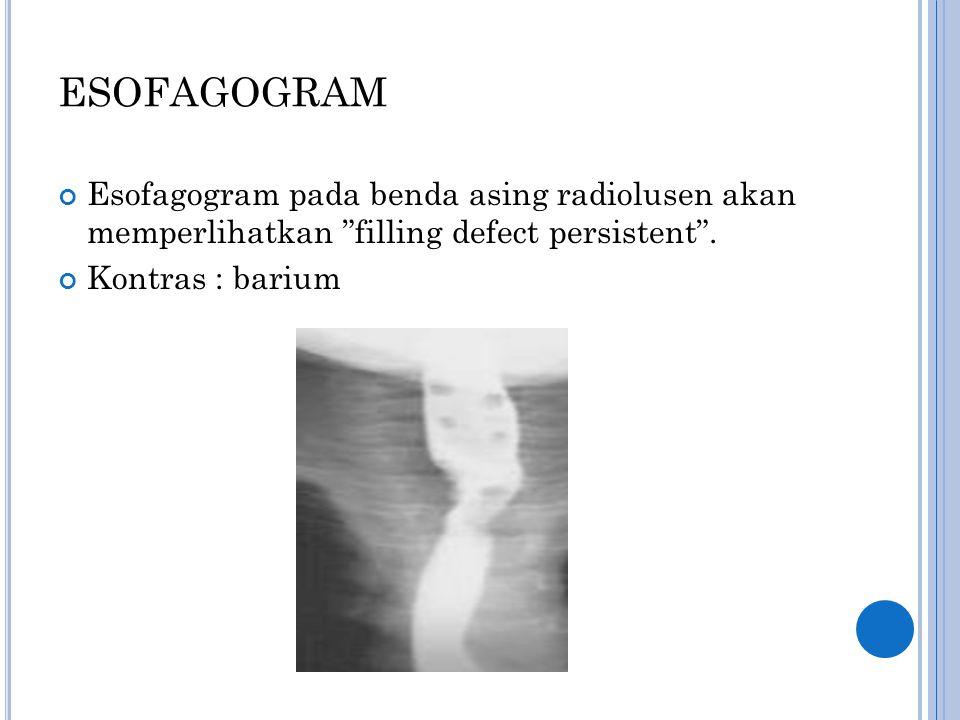 ESOFAGOGRAM Esofagogram pada benda asing radiolusen akan memperlihatkan filling defect persistent .