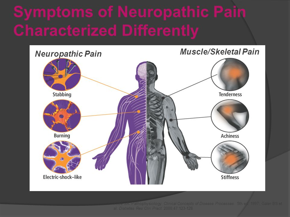 Symptoms of Neuropathic Pain Characterized Differently